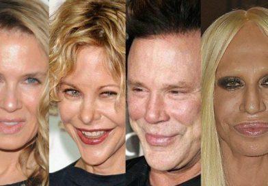 Celebridades de Hollywood que se desfiguraron el rostro con cirugías